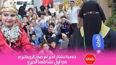 Photo of جمعية بشائر الخير لمرضى الروماتيزم تنظم أول نشاطها الخيري