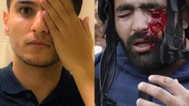 Photo of محمد عساف الاحتلال يستهدف العين للتغطية على الجرائم التي يرتكبها بحق الشعب الفلسطيني