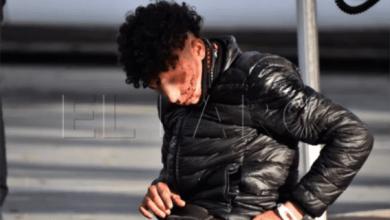 صورة مهاجر مغربي يتعرض لاعتداء خطير بمحيط ميناء سبتة