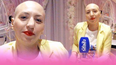 صورة قصة ألم وأمل..السيدة ليلى في صراع من أجل هزيمة مرض السرطان